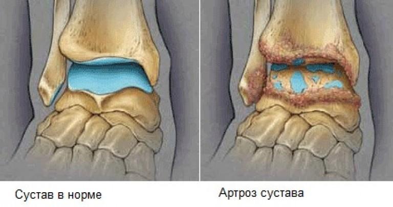 остеоартроз голеностопного сустава 1 степени