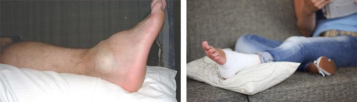Особенности и лечение ушиба голеностопного сустава