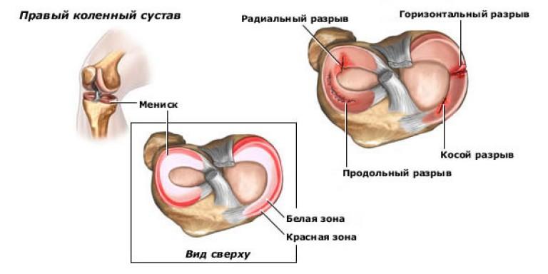 симптомы разрыва заднего рога мениска коленного сустава