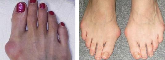 Поражение пальцев на ногах
