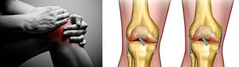 физомед коленный сустав