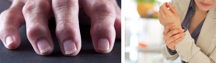 Осложнения ревматоидного артрита суставов на сердце, легкие и почки