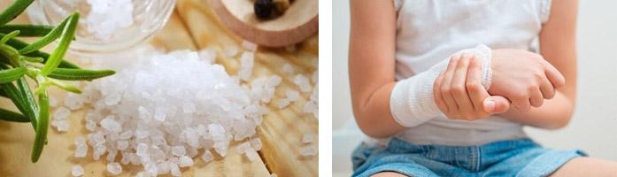 Солевые компрессы как сделать 145