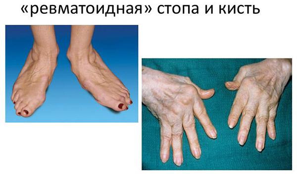 Признаки деформации суставов