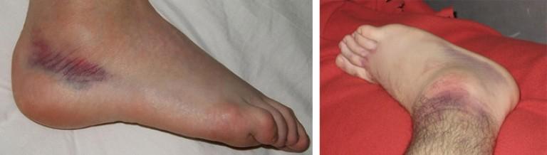 Как лечить растяжение голеностопа в домашних условиях