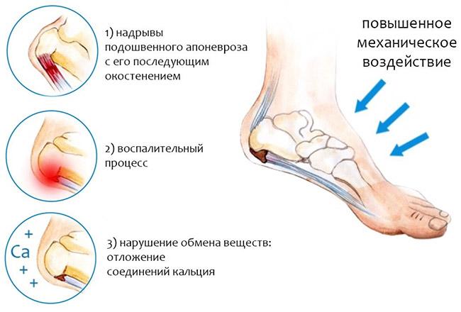 Причины возникновения костного нароста