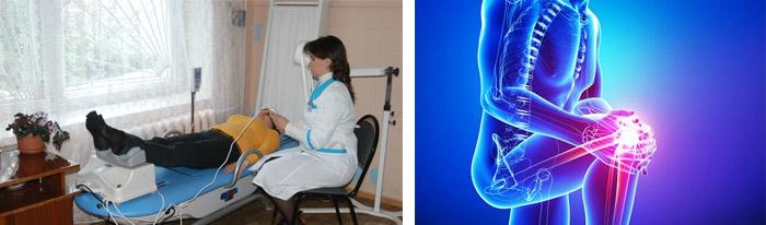 Процедуры при воспалении суставов