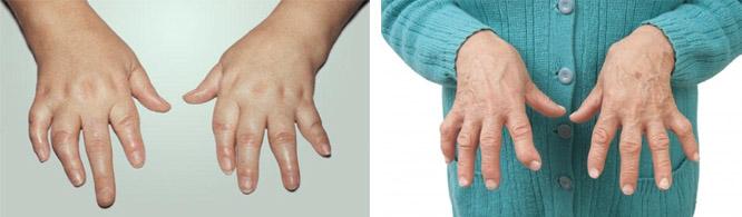 Симптомы ревматоидного артрита у женщин