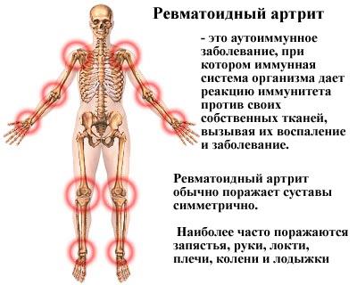 Ревматоидная форма артрита