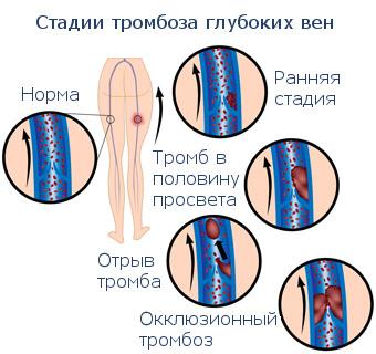 Стадии венозной болезни