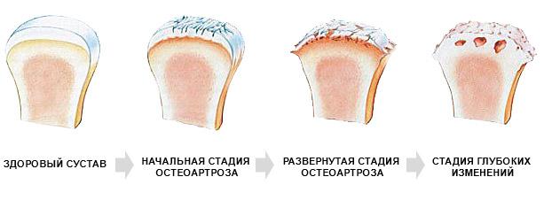 Стадии развития патологии