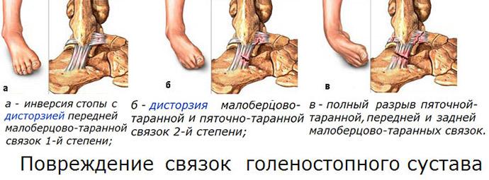 Степени повреждения