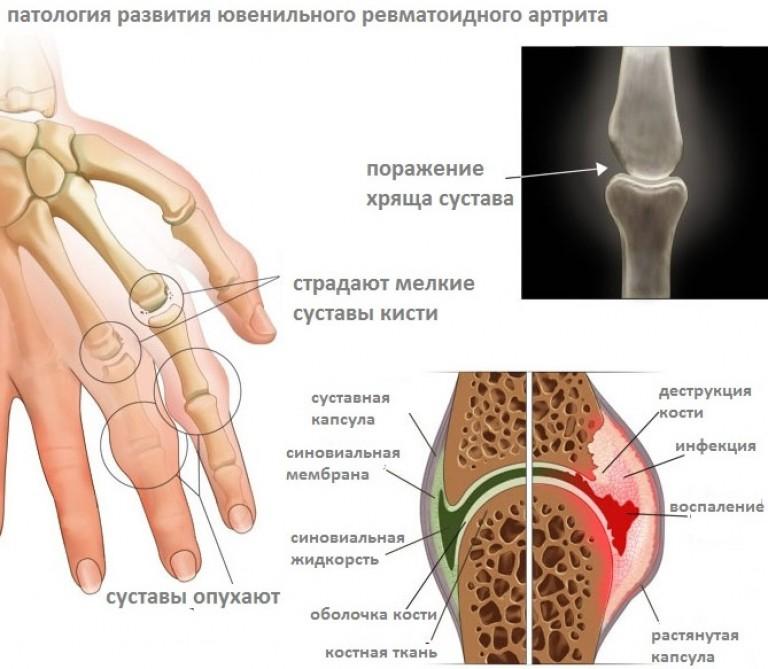 болят суставы мизинцев на руке