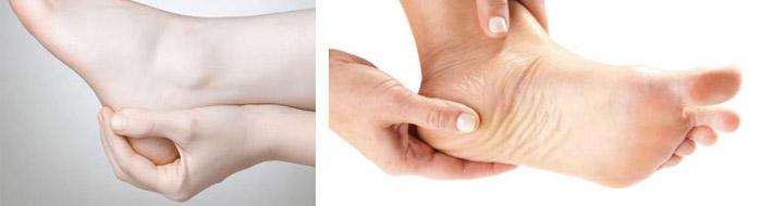 Терапия костных наростов