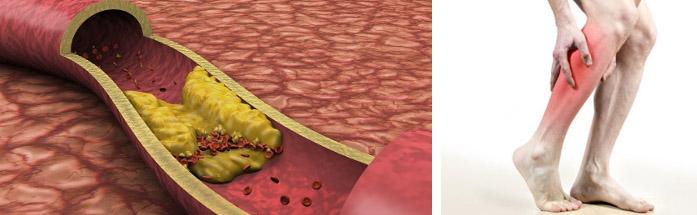 Терапия при атеросклерозе