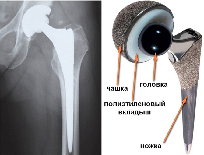 Протез тазобедренного сустава фирмы зиммер цементный эндопротез тазобедренного сустава срок службы