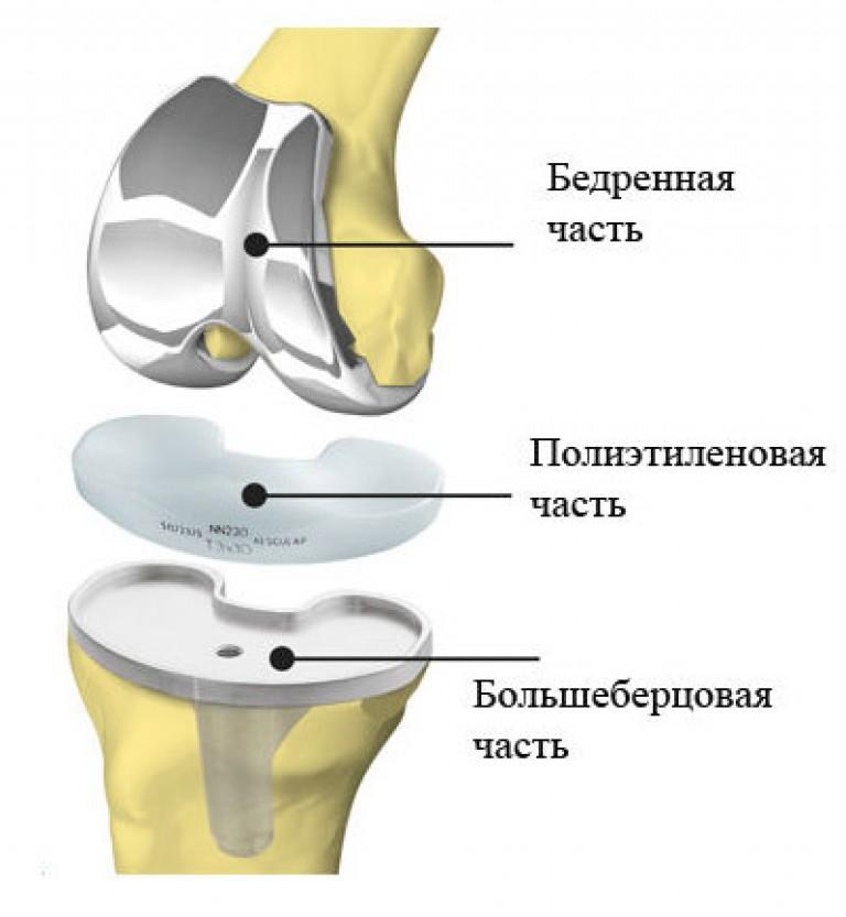 сколько стоят имплантанты коленного сустава
