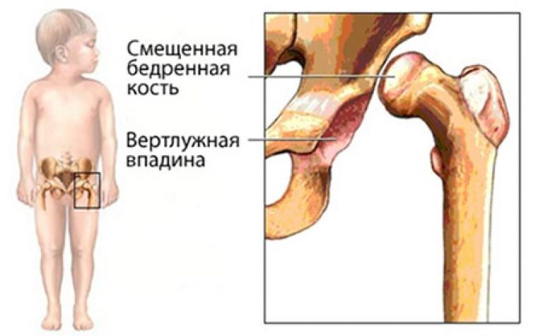предвывих тазобедренного сустава у детей симптомы