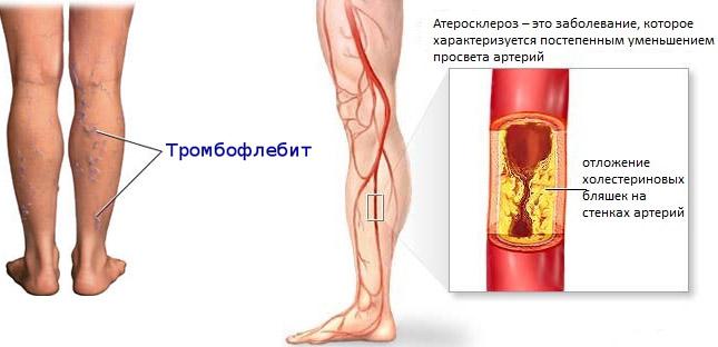 Тромбофлебит и атеросклероз