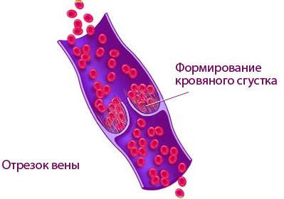 Формирование сгустка крови