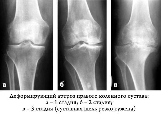 Секрет раскрыт Узнайте можно ли вылечить артроз коленного сустава