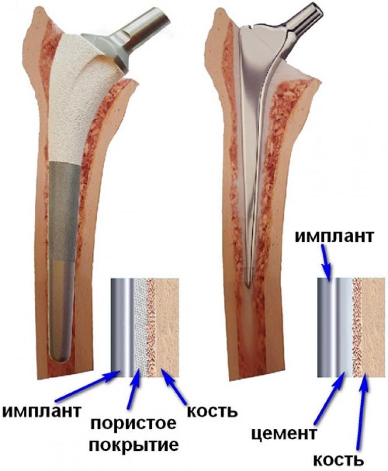 эндопротез крупных суставов цементна