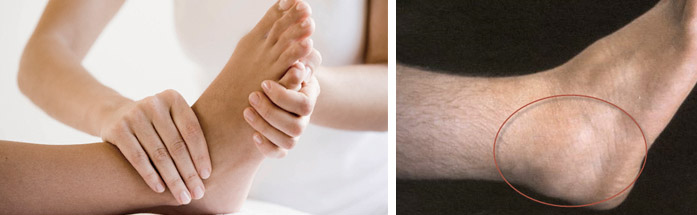 Что такое артрит суставов