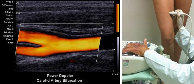 Что такое дуплексное сканирование