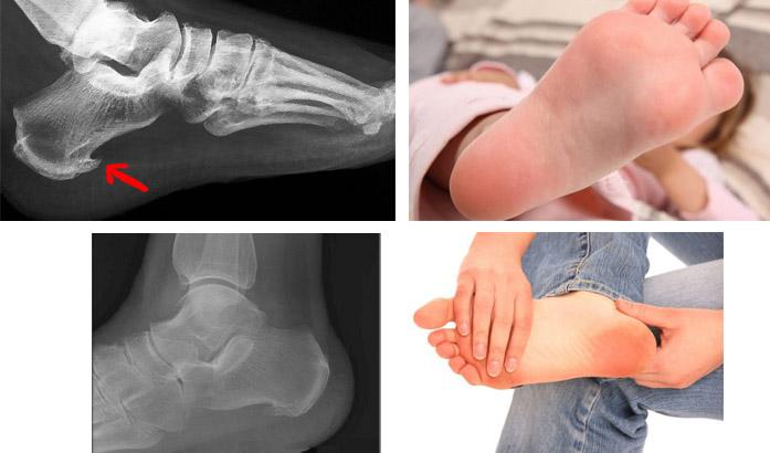 Фотографии шипа на стопе на рентгеновском снимке