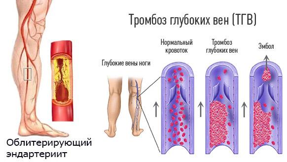 Эндартериит и тромбоз
