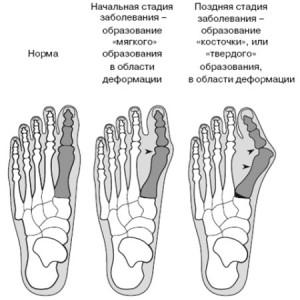 Деформация сустава ноги