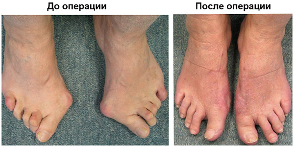 До и после хирургического вмешательства