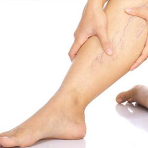 Какие венотоники применяются при варикозной болезни ног