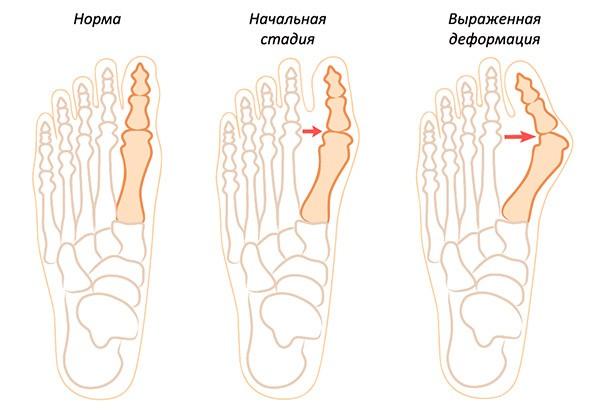 Как деформируется кость