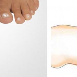 Как избавиться от косточек на пальцах