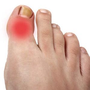 Лечение воспалительных процессов в суставе большого пальца ноги