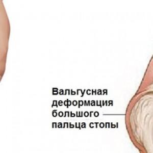 Лечение деформации сустава
