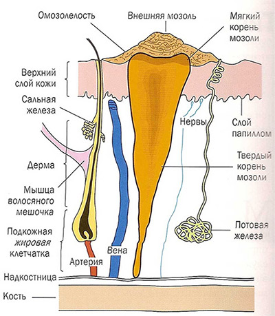 Мозоль с корнем