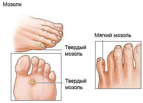 Образования на ноге