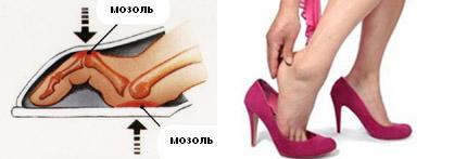 Повреждения кожи из-за неудобной обуви