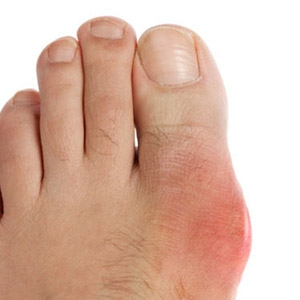 Почему появляется выступающая косточка на ноге