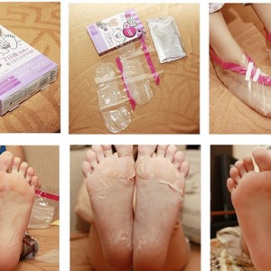 Противомозольные носочки