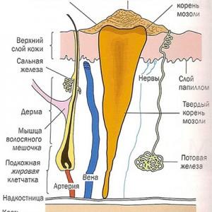 Строение мозоли с корнем