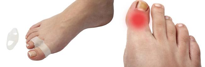 Устранение косточки на пальце