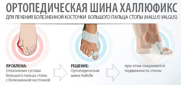 Шина Hallufix