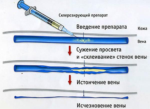 Введение склерозирующего препарата