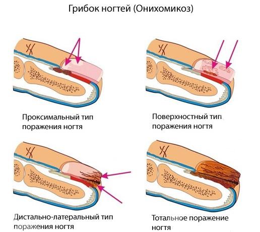 Виды онихомикоза
