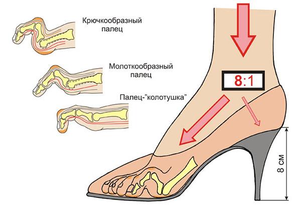 Вред обуви на высоком каблуке