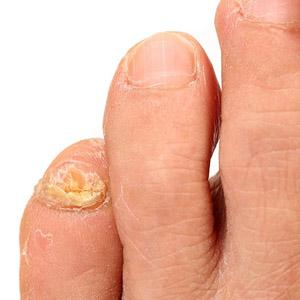 Дешевые и эффективные препараты для лечения грибка на ногтях