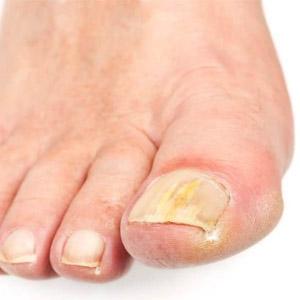 Какие препараты помогают вылечить грибок ногтей на ногах